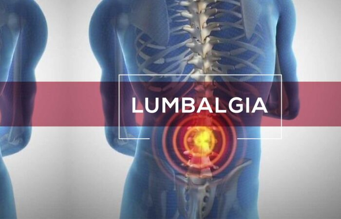 ¿Qué es la lumbalgia?